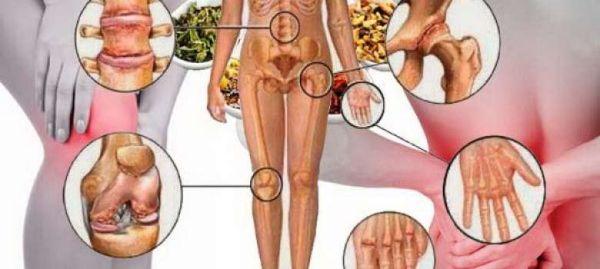 nedostatak-vitamina-d-simptomi-glavni