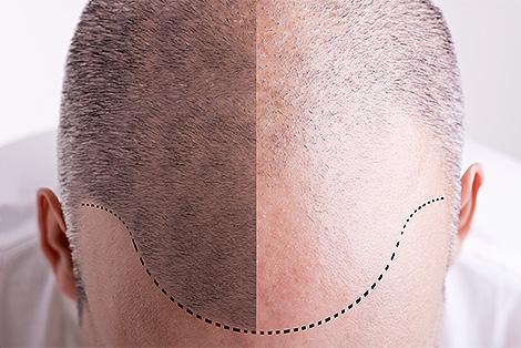 presadjivanje-kose